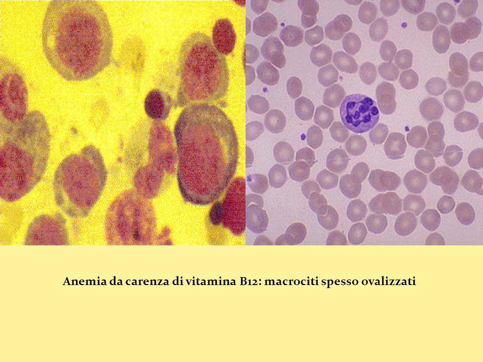 Anemia da carenza di vitamina B12: macrociti spesso ovalizzati