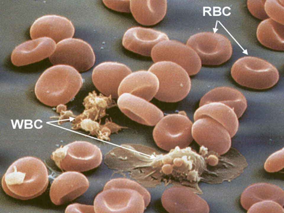 La linfocitopenia acquisita si riferisce alle sindromi associate a deplezione di linfociti ematici non secondaria a malattie congenite.