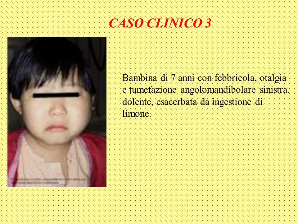 CASO CLINICO 3 Bambina di 7 anni con febbricola, otalgia e tumefazione angolomandibolare sinistra, dolente, esacerbata da ingestione di limone.