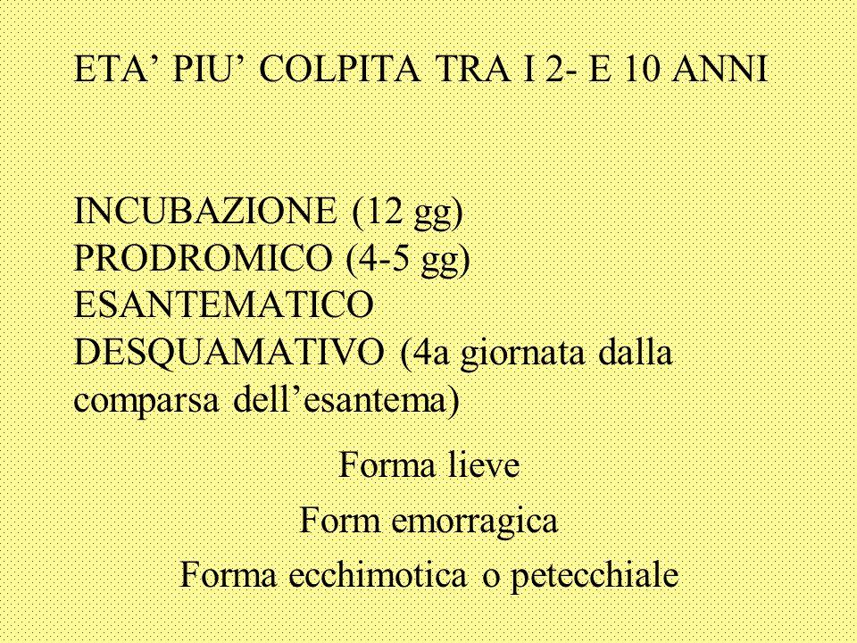 ETA PIU COLPITA TRA I 2- E 10 ANNI INCUBAZIONE (12 gg) PRODROMICO (4-5 gg) ESANTEMATICO DESQUAMATIVO (4a giornata dalla comparsa dellesantema) Forma lieve Form emorragica Forma ecchimotica o petecchiale