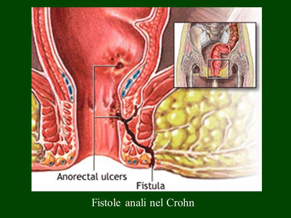 Fistole anali nel Crohn