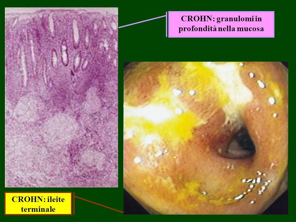 CROHN: granulomi in profondità nella mucosa CROHN: ileite terminale