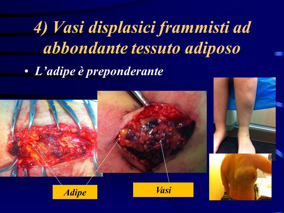 4) Vasi displasici frammisti ad abbondante tessuto adiposo Ladipe è preponderante Vasi Adipe