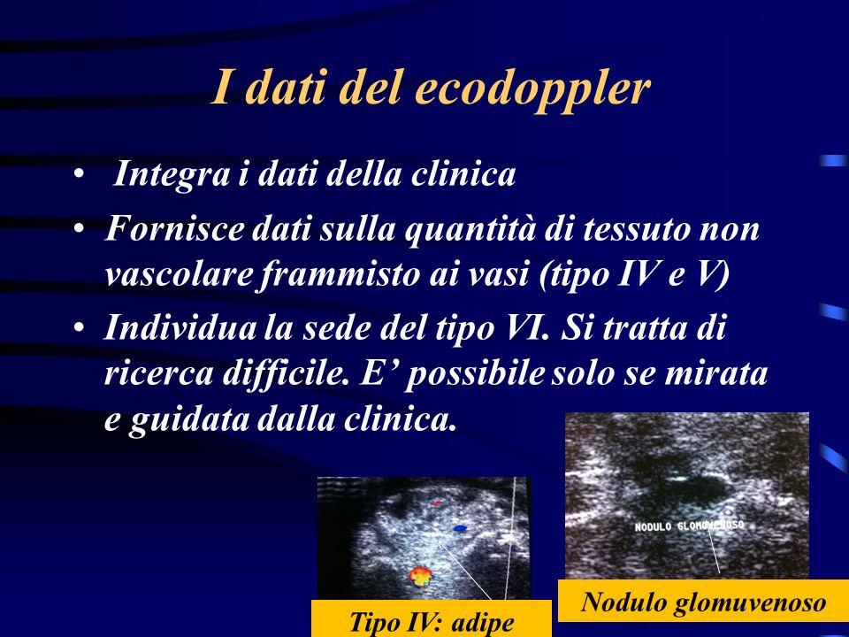 I dati del ecodoppler Integra i dati della clinica Fornisce dati sulla quantità di tessuto non vascolare frammisto ai vasi (tipo IV e V) Individua la sede del tipo VI.