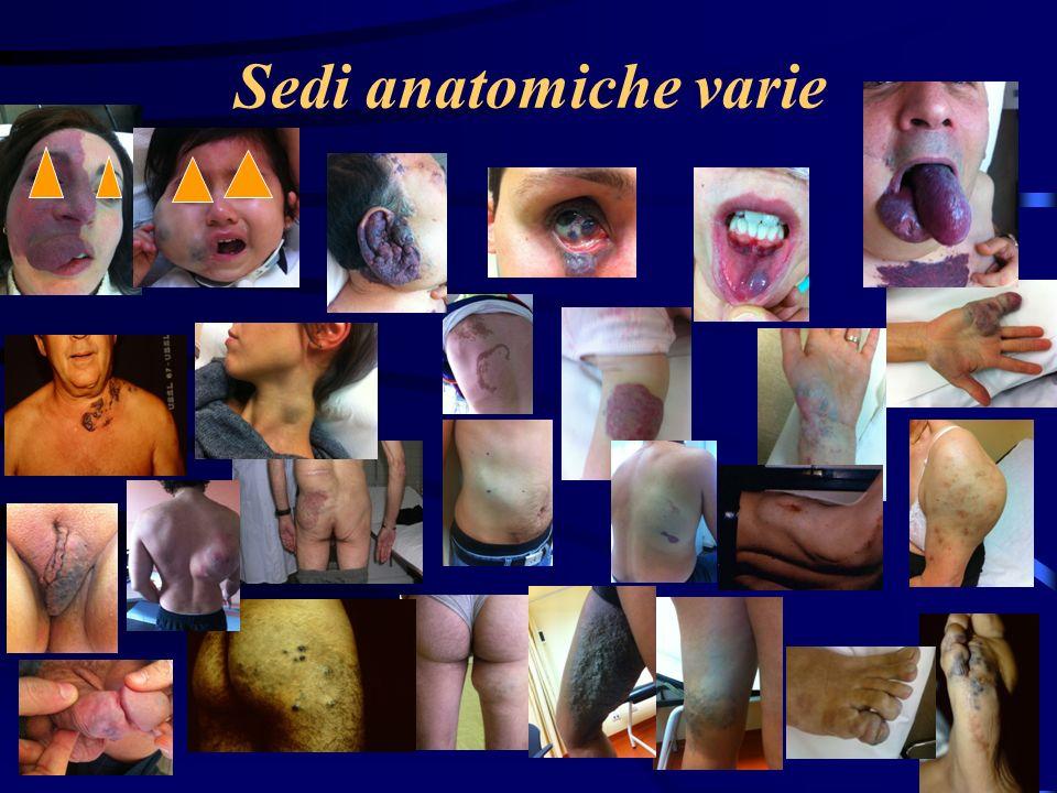 Trattamento I tipi IV e V devono essere trattati chirurgicamente se si desidera rimuovere la massa (la sclerosi non basta!) Il tipo VI richiede la asportazione chirurgica precisa pena la permanenza del dolore, che può essere molto fastidioso
