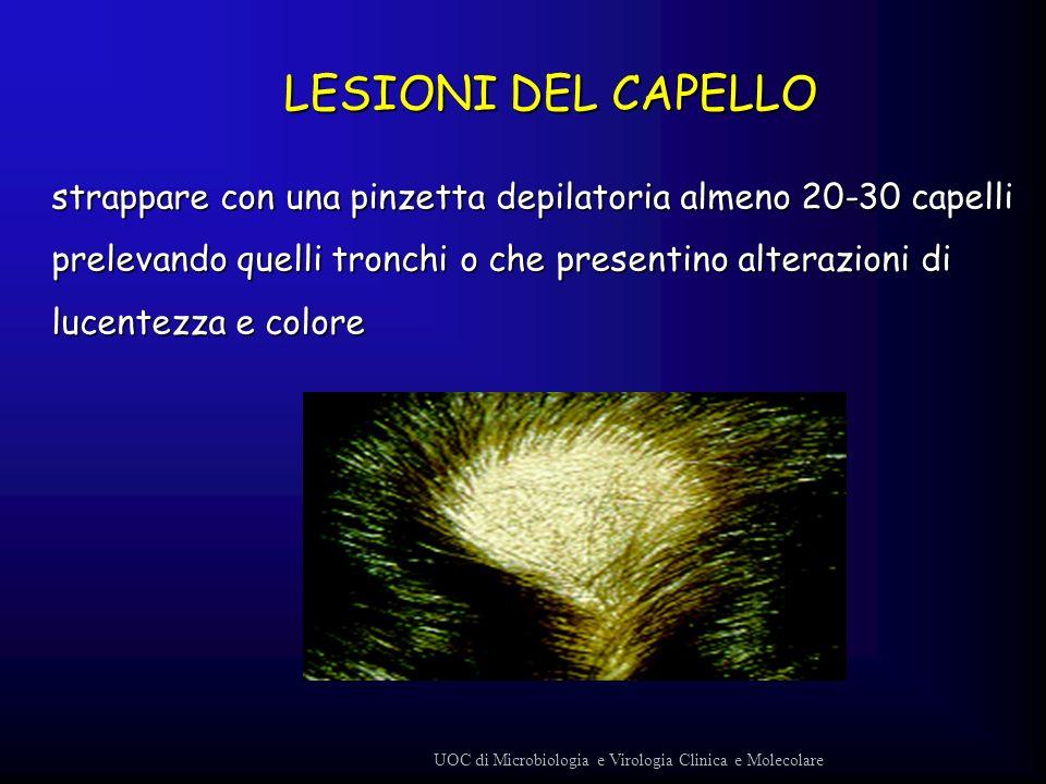LESIONI DEL CAPELLO LESIONI DEL CAPELLO strappare con una pinzetta depilatoria almeno 20-30 capelli prelevando quelli tronchi o che presentino alteraz