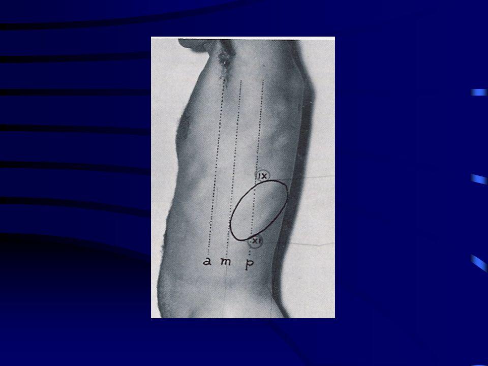 Esame della milza Loggia splenica: aperta anteriormente; delimitata lateralmente e posteriormente dal diaframma, medialmente dallo stomaco, inferiormente dalla flessura colica sinistra e dal legame freno- colico PALPAZIONE pz.