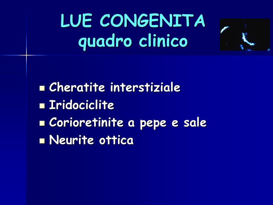 LUE CONGENITA quadro clinico Cheratite interstiziale Cheratite interstiziale Iridociclite Iridociclite Corioretinite a pepe e sale Corioretinite a pep