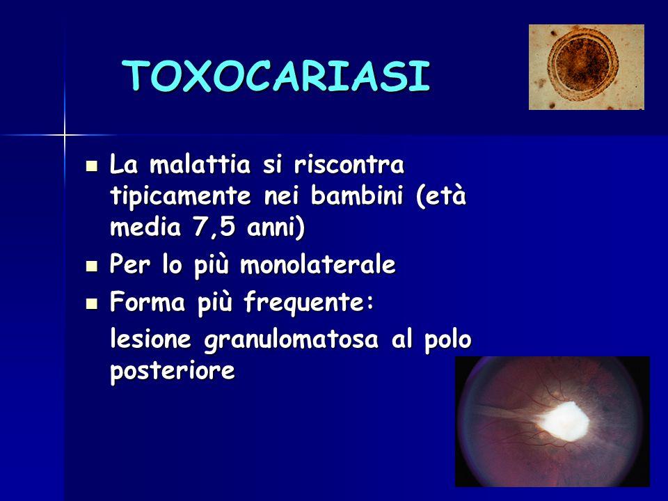 TOXOCARIASI La malattia si riscontra tipicamente nei bambini (età media 7,5 anni) La malattia si riscontra tipicamente nei bambini (età media 7,5 anni