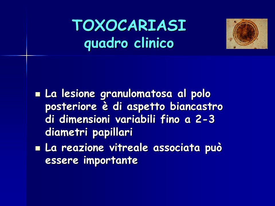 TOXOCARIASI quadro clinico La lesione granulomatosa al polo posteriore è di aspetto biancastro di dimensioni variabili fino a 2-3 diametri papillari L