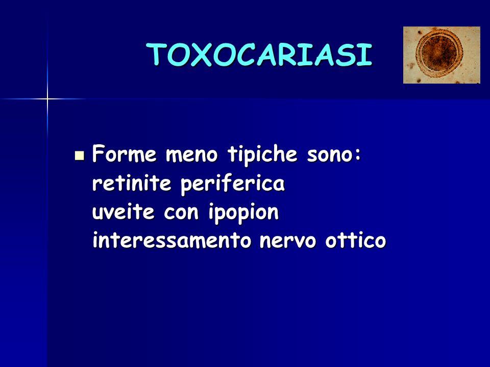 TOXOCARIASI Forme meno tipiche sono: Forme meno tipiche sono: retinite periferica uveite con ipopion interessamento nervo ottico