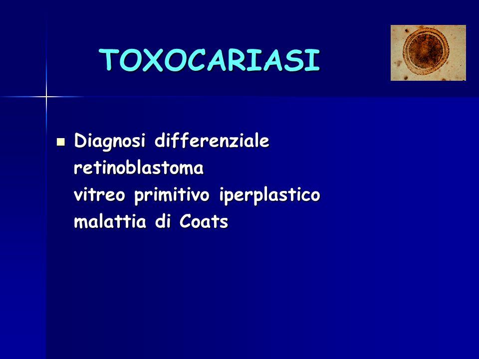 TOXOCARIASI Diagnosi differenziale Diagnosi differenzialeretinoblastoma vitreo primitivo iperplastico malattia di Coats
