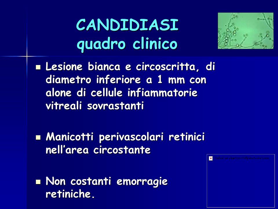 CANDIDIASI quadro clinico Lesione bianca e circoscritta, di diametro inferiore a 1 mm con alone di cellule infiammatorie vitreali sovrastanti Lesione