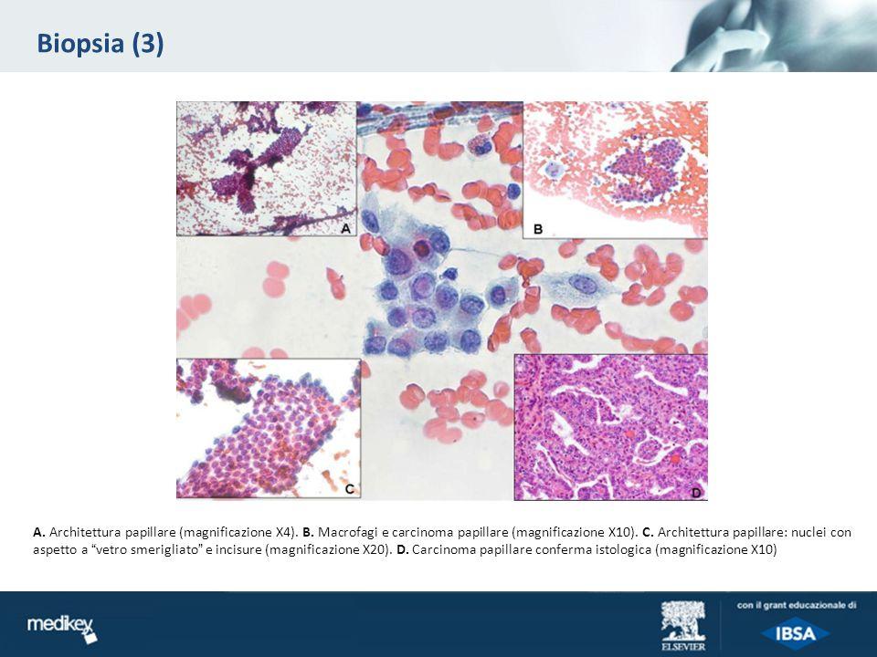 Biopsia (3) A.Architettura papillare (magnificazione X4).
