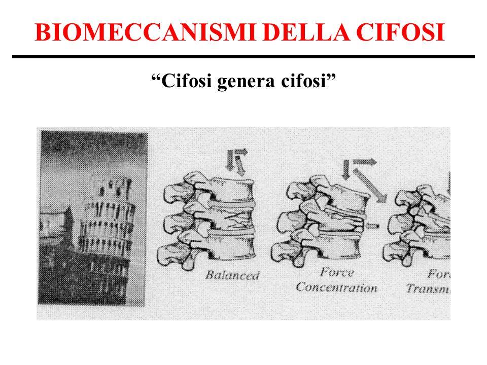 BIOMECCANISMI DELLA CIFOSI Cifosi genera cifosi