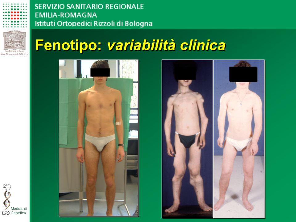 Modulo di Genetica Fenotipo: variabilità clinica