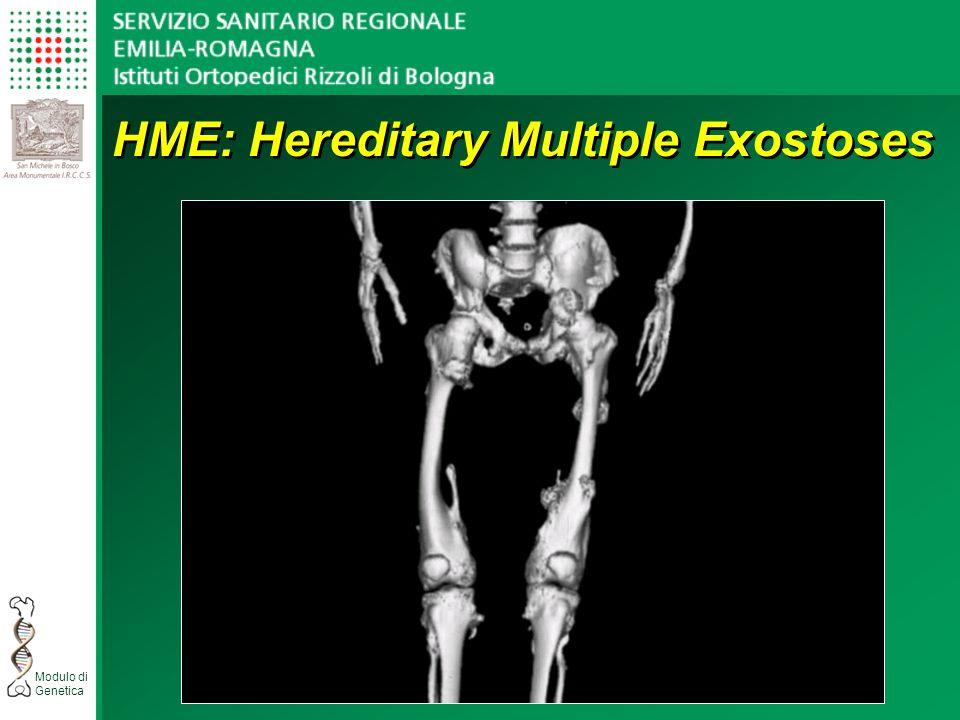 Modulo di Genetica HME: Hereditary Multiple Exostoses