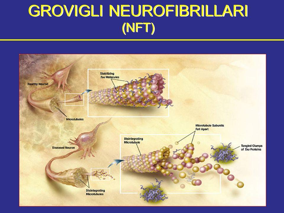 GROVIGLI NEUROFIBRILLARI (NFT)