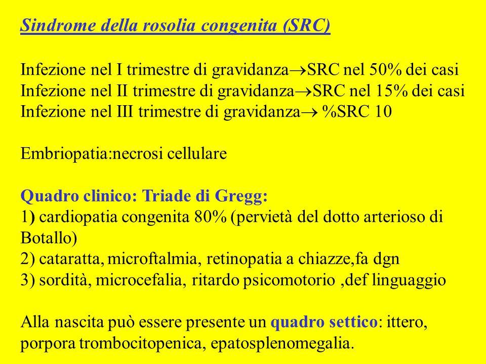 Sindrome della rosolia congenita (SRC) Infezione nel I trimestre di gravidanza SRC nel 50% dei casi Infezione nel II trimestre di gravidanza SRC nel 1