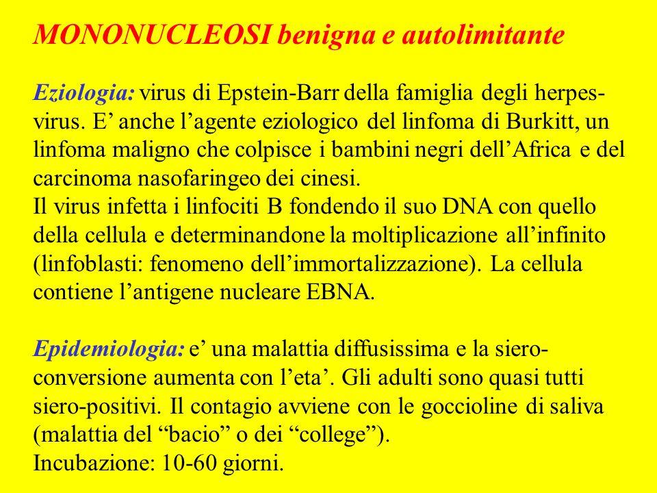 MONONUCLEOSI benigna e autolimitante Eziologia: virus di Epstein-Barr della famiglia degli herpes- virus. E anche lagente eziologico del linfoma di Bu
