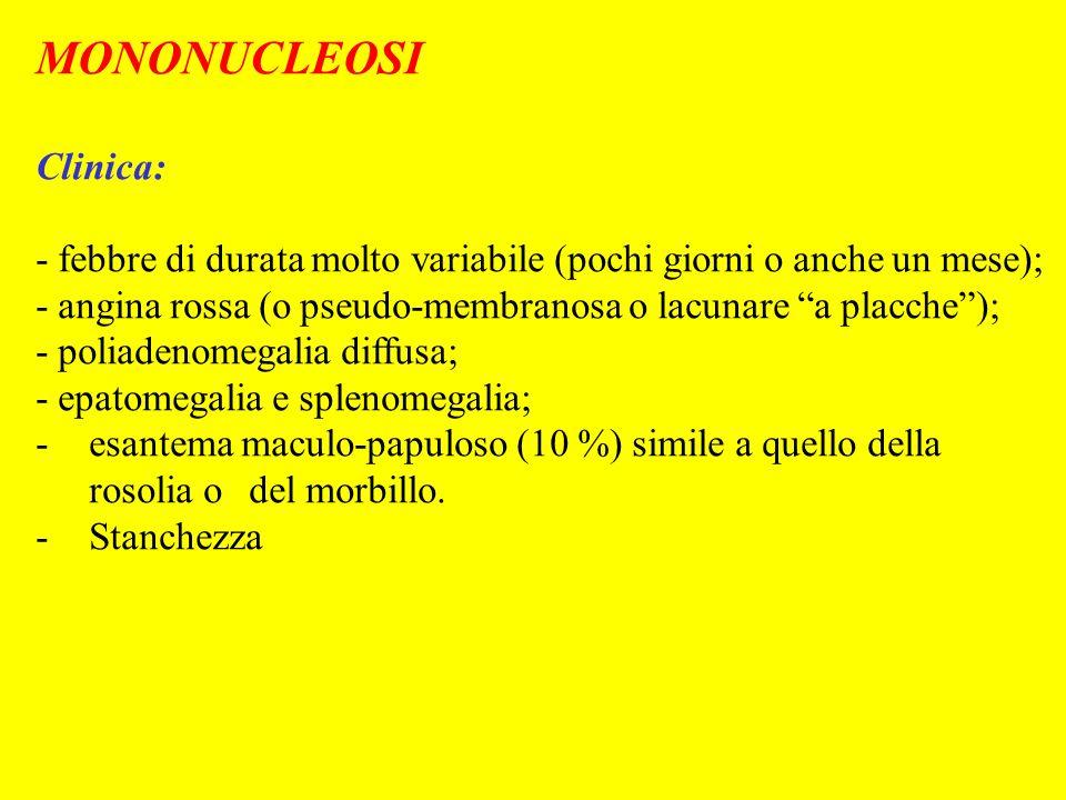 MONONUCLEOSI Clinica: - febbre di durata molto variabile (pochi giorni o anche un mese); - angina rossa (o pseudo-membranosa o lacunare a placche); -