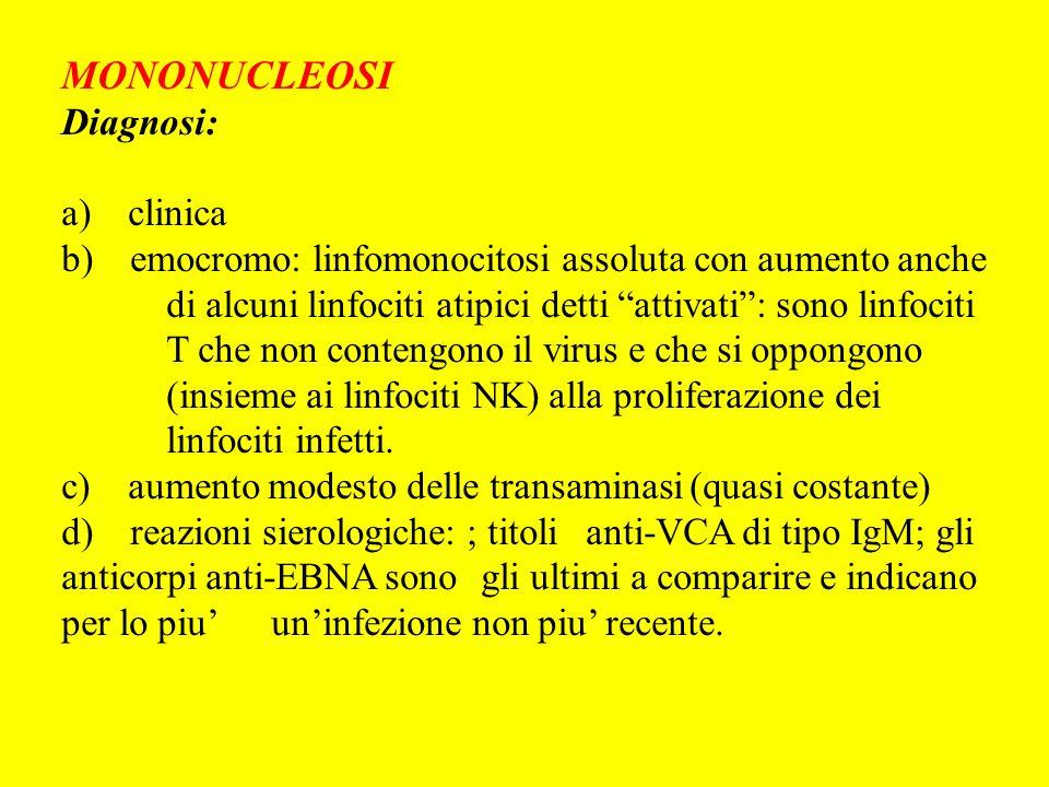 MONONUCLEOSI Diagnosi: a) clinica b) emocromo: linfomonocitosi assoluta con aumento anche di alcuni linfociti atipici detti attivati: sono linfociti T