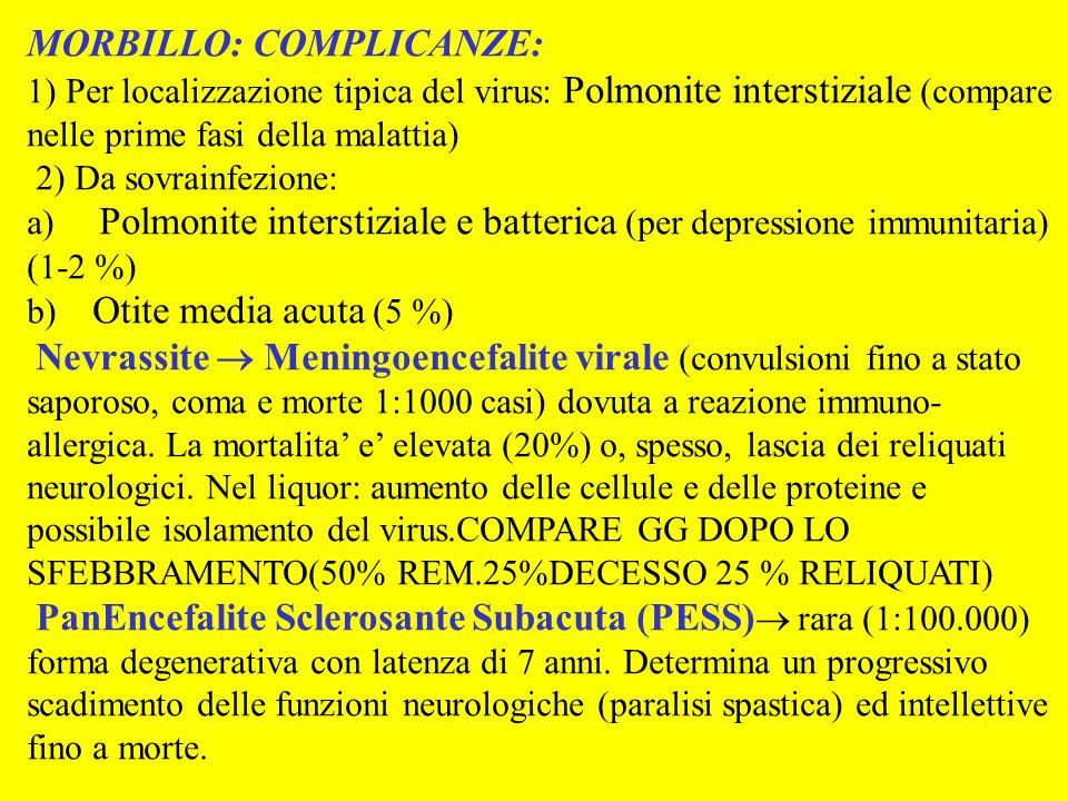 MORBILLO: PROFILASSI: Vaccinazione con virus vivo attenuato: 12° mese – 1-2 aa.