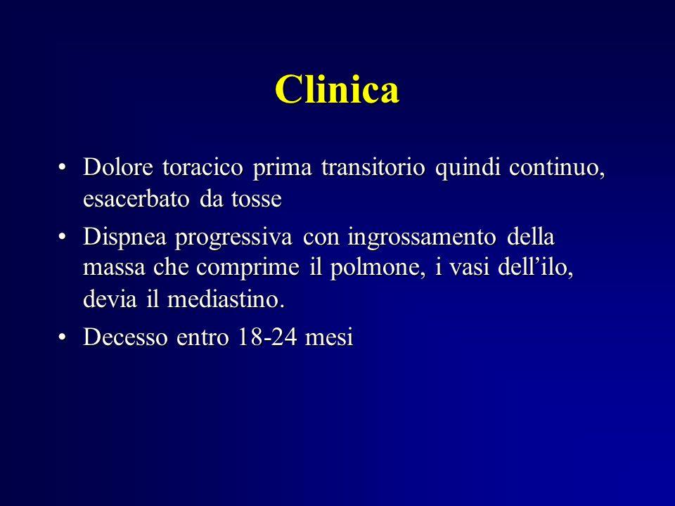 Clinica Dolore toracico prima transitorio quindi continuo, esacerbato da tosseDolore toracico prima transitorio quindi continuo, esacerbato da tosse D