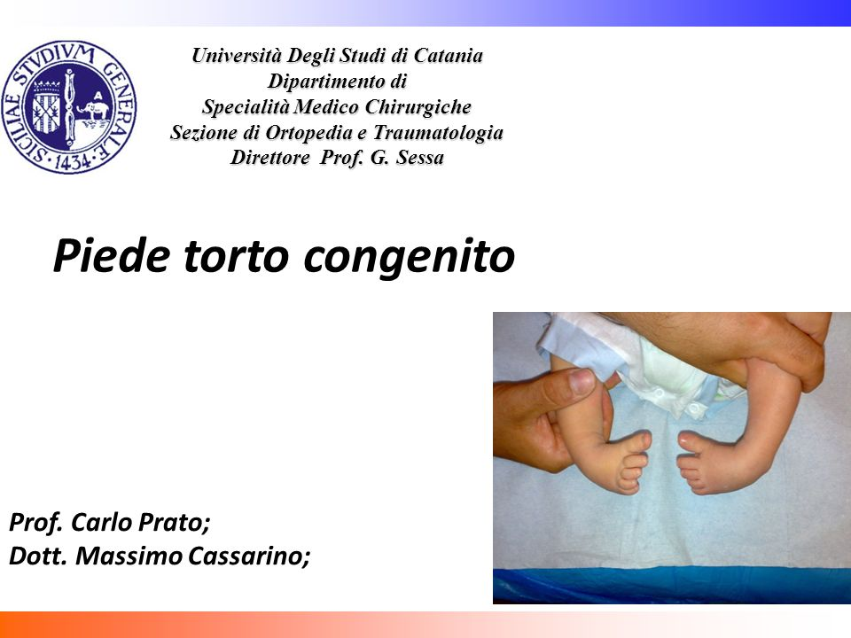 Università Degli Studi di Catania Dipartimento di Specialità Medico Chirurgiche Sezione di Ortopedia e Traumatologia Direttore Prof. G. Sessa Piede to
