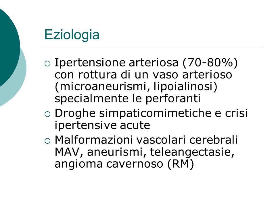 Eziologia Ipertensione arteriosa (70-80%) con rottura di un vaso arterioso (microaneurismi, lipoialinosi) specialmente le perforanti Droghe simpaticom