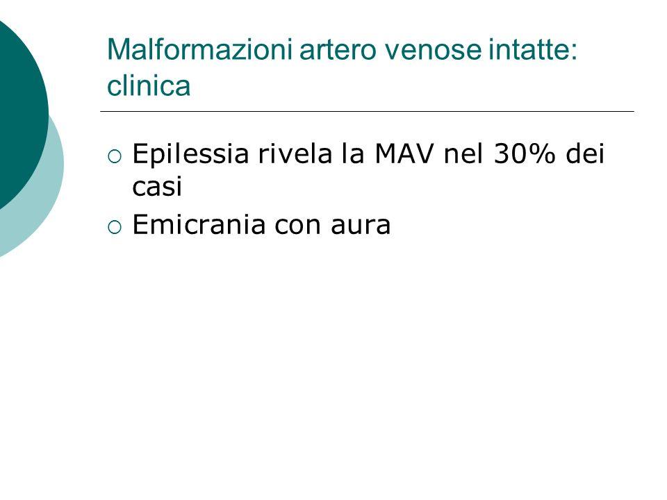 Malformazioni artero venose intatte: clinica Epilessia rivela la MAV nel 30% dei casi Emicrania con aura