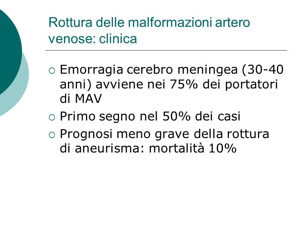 Rottura delle malformazioni artero venose: clinica Emorragia cerebro meningea (30-40 anni) avviene nei 75% dei portatori di MAV Primo segno nel 50% de