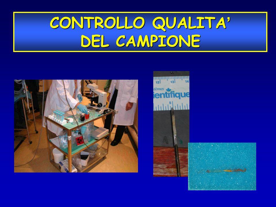 CONTROLLO QUALITA CONTROLLO QUALITA DEL CAMPIONE