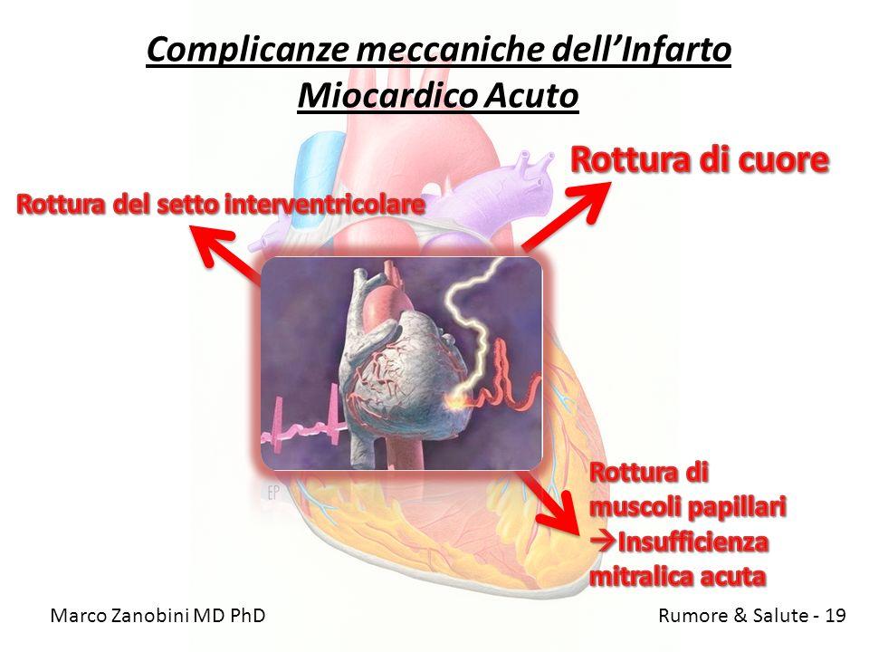 Complicanze meccaniche dellInfarto Miocardico Acuto Marco Zanobini MD PhD Rumore & Salute - 19