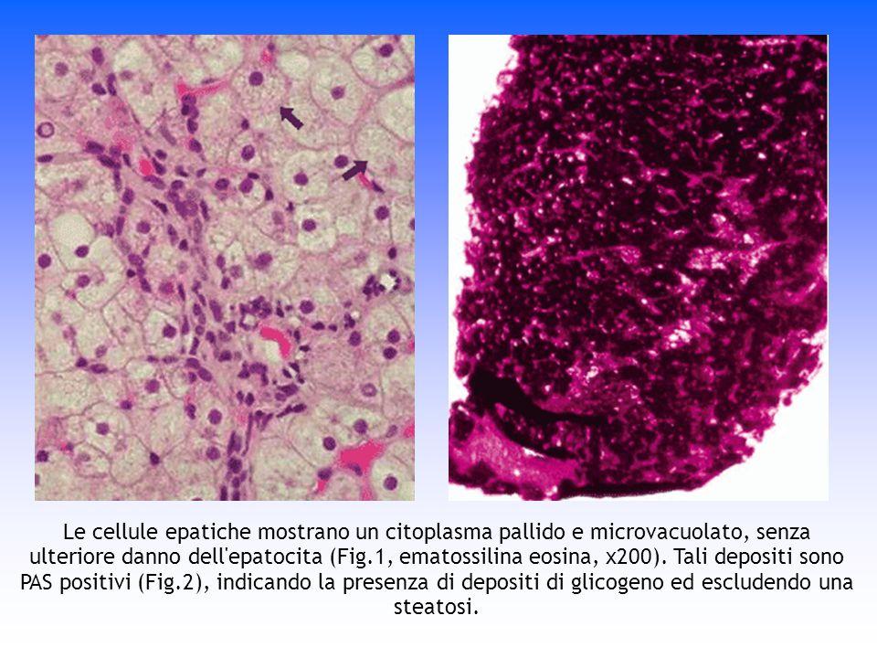 Le cellule epatiche mostrano un citoplasma pallido e microvacuolato, senza ulteriore danno dell'epatocita (Fig.1, ematossilina eosina, x200). Tali dep
