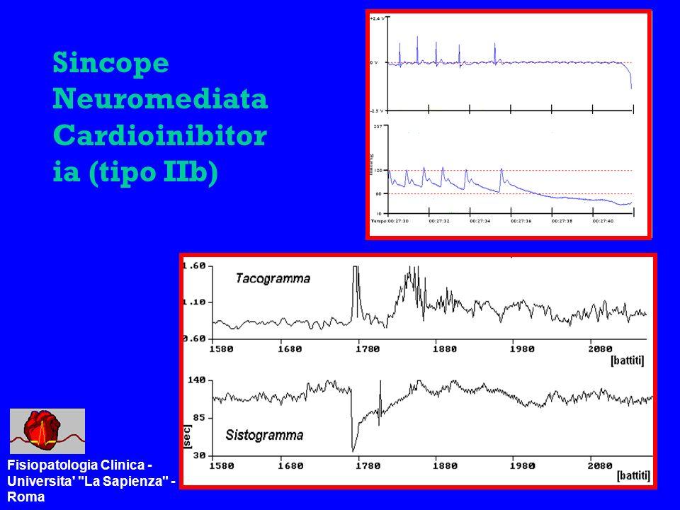 Sincope Neuromediata Cardioinibitor ia (tipo IIb) Fisiopatologia Clinica - Universita La Sapienza - Roma