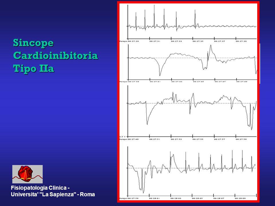 Sincope Cardioinibitoria Tipo IIa Fisiopatologia Clinica - Universita La Sapienza - Roma