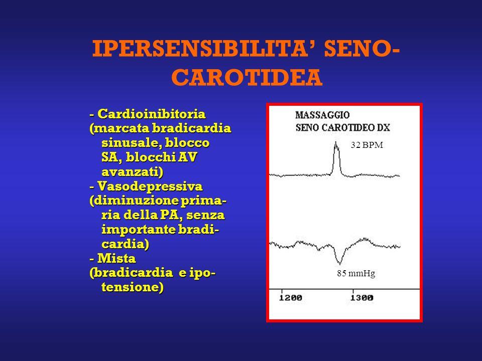 IPERSENSIBILITA SENO- CAROTIDEA - Cardioinibitoria (marcata bradicardia sinusale, blocco SA, blocchi AV avanzati) - Vasodepressiva (diminuzione prima- ria della PA, senza importante bradi- cardia) - Mista (bradicardia e ipo- tensione) 32 BPM 85 mmHg
