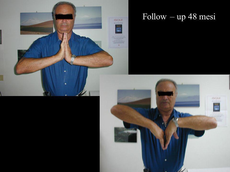 Follow – up 48 mesi