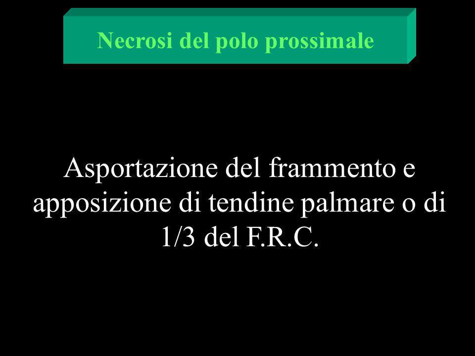 Asportazione del frammento e apposizione di tendine palmare o di 1/3 del F.R.C. Necrosi del polo prossimale