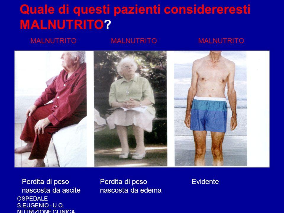 OSPEDALE S.EUGENIO - U.O. NUTRIZIONE CLINICA Quale di questi pazienti considereresti MALNUTRITO? MALNUTRITO Perdita di peso nascosta da ascite Perdita