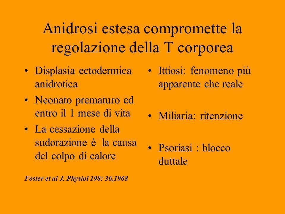 Anidrosi estesa compromette la regolazione della T corporea Displasia ectodermica anidrotica Neonato prematuro ed entro il 1 mese di vita La cessazione della sudorazione è la causa del colpo di calore Foster et al J.