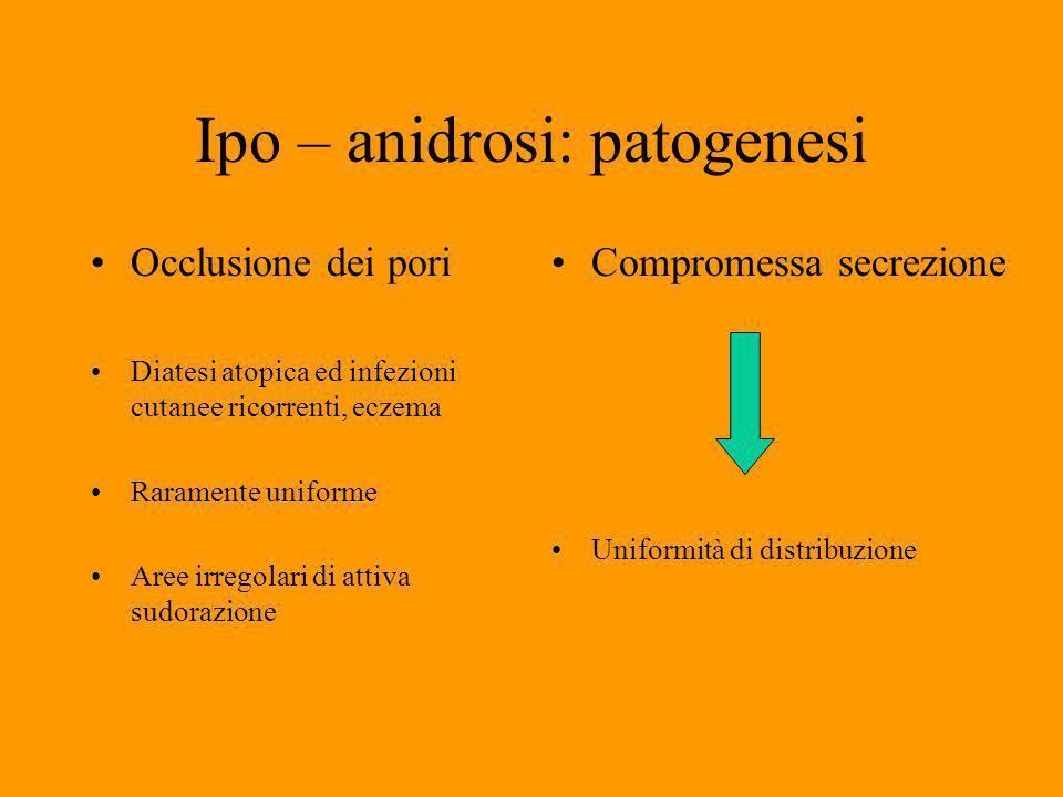 Ipo – anidrosi: patogenesi Occlusione dei pori Diatesi atopica ed infezioni cutanee ricorrenti, eczema Raramente uniforme Aree irregolari di attiva sudorazione Compromessa secrezione Uniformità di distribuzione