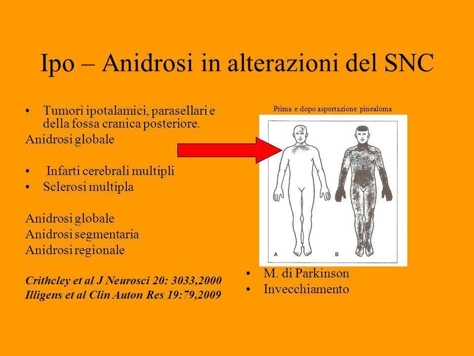 Ipo – Anidrosi in alterazioni del SNC Tumori ipotalamici, parasellari e della fossa cranica posteriore.