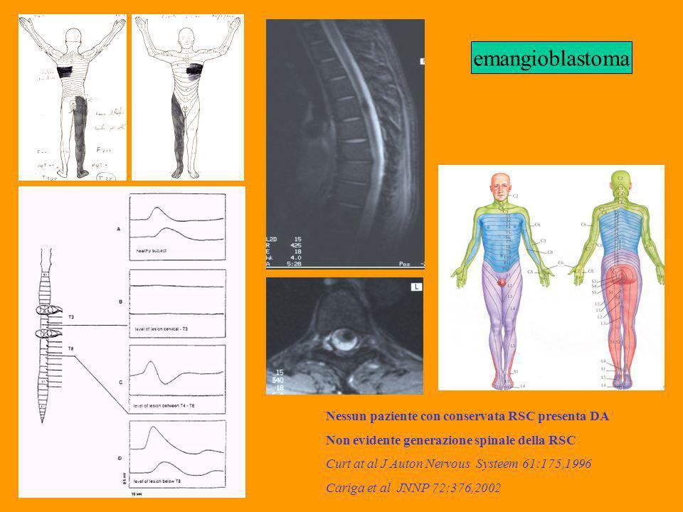 Nessun paziente con conservata RSC presenta DA Non evidente generazione spinale della RSC Curt at al J Auton Nervous Systeem 61:175,1996 Cariga et al JNNP 72:376,2002 emangioblastoma