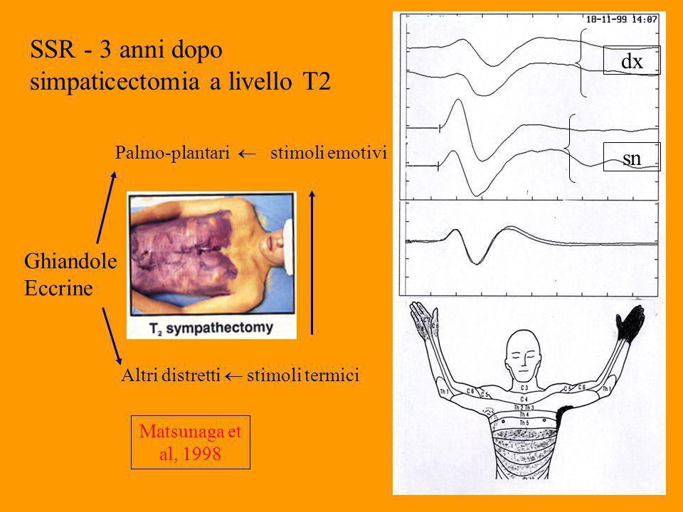 SSR - 3 anni dopo simpaticectomia a livello T2 Ghiandole Eccrine Palmo-plantari stimoli emotivi Altri distretti stimoli termici Matsunaga et al, 1998 dx sn