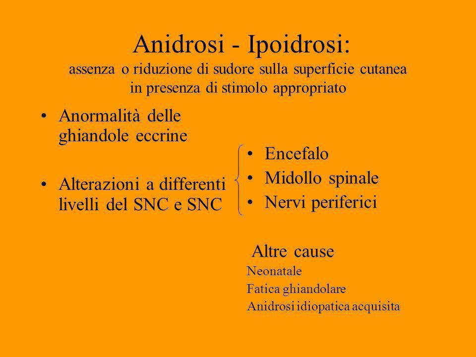 Algodistrofia Simpatica Riflessa Prima Dopo infiltrazione con anestetico gaspingprima dopo