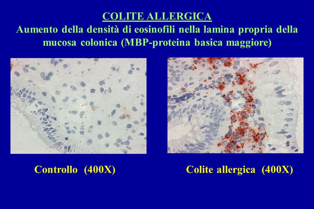 COLITE ALLERGICA Aumento della densità di eosinofili nella lamina propria della mucosa colonica (MBP-proteina basica maggiore) Controllo (400X)Colite