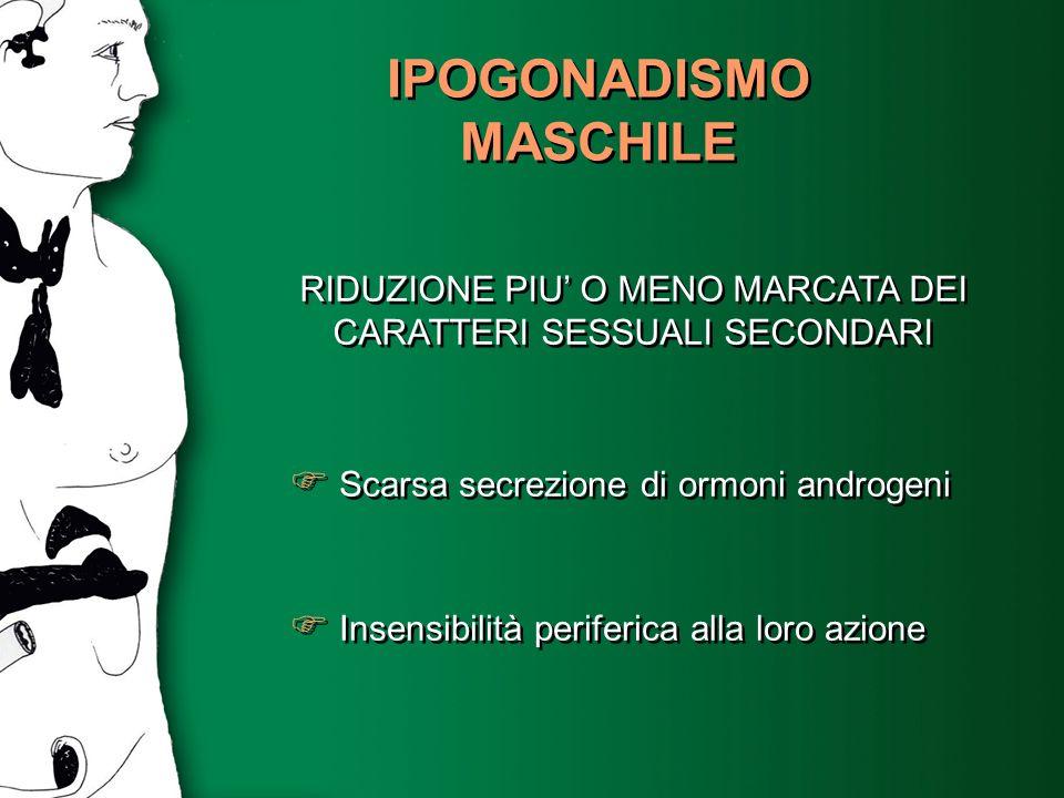 IPOGONADISMO MASCHILE RIDUZIONE PIU O MENO MARCATA DEI CARATTERI SESSUALI SECONDARI Scarsa secrezione di ormoni androgeni Insensibilità periferica all