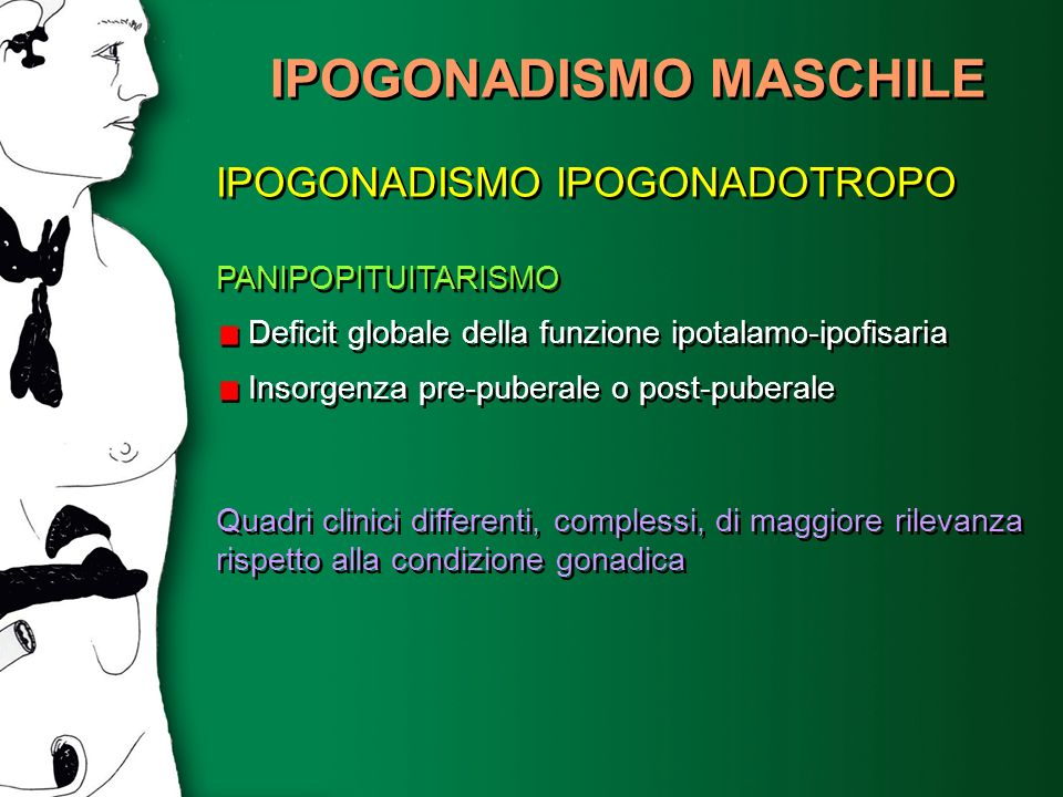 IPOGONADISMO MASCHILE IPOGONADISMO IPOGONADOTROPO PANIPOPITUITARISMO Deficit globale della funzione ipotalamo-ipofisaria Insorgenza pre-puberale o pos